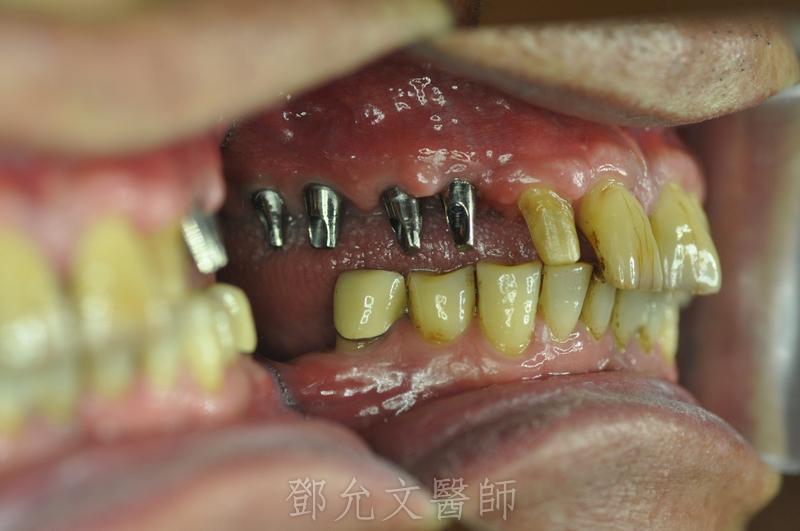植牙印模時側面觀