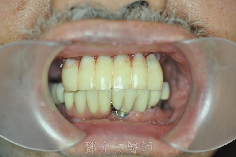 植牙手術即拔即種後立即承載臨時假牙
