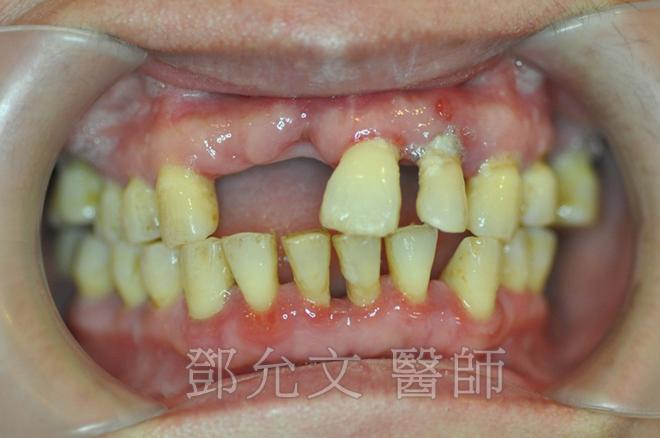 病患求診時X光片-典型成人型牙周病