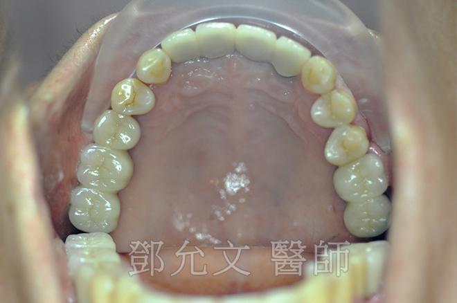 植牙手術(即拔即種十顆植體)後當日立即製作臨時義齒恢復美觀,免除無齒的尷尬