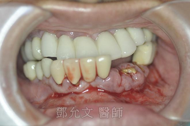 植牙前-口內照正面觀