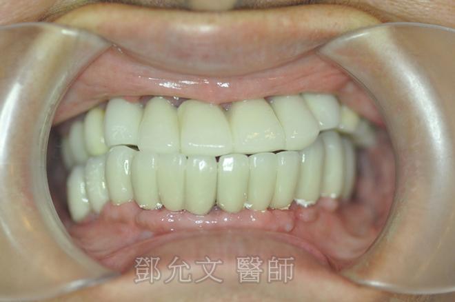 植牙後-口內照正面觀