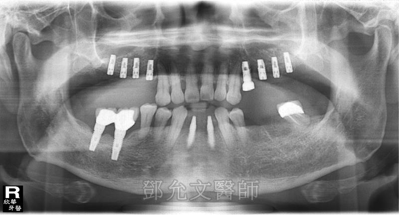 第二次植牙手術後右上顎後牙區植入四顆植體並同時進行上顎竇提升術!