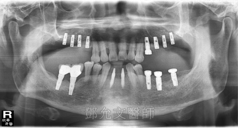 第四次植牙手術後,左下顎後牙區植入三顆植體