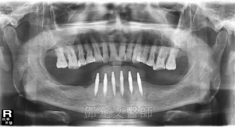 植牙手術後,下顎前牙區植入六顆植體並立即承載臨時義齒