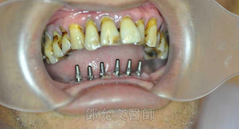 植牙義齒印模前口內照