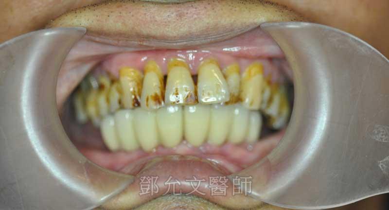 下顎前牙區植六顆植體製作八顆固定式義齒