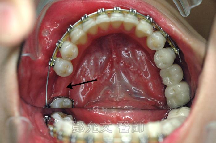 齒列矯正中,將右下第一大臼齒空間恢復