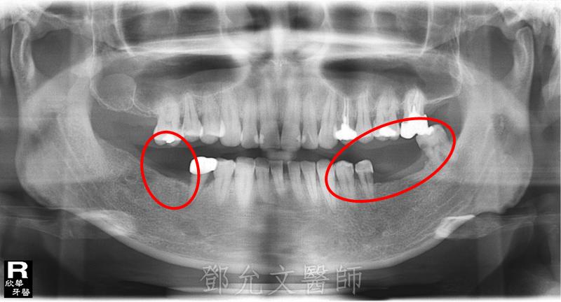 人工植牙手術 左下牙橋拆除後X光片(植牙手術前)