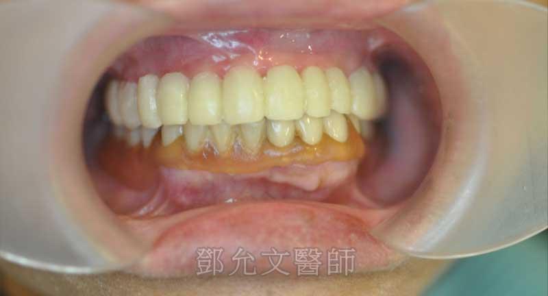 植牙手術14天拆線後立即裝上臨時固定義齒(咬合面觀)