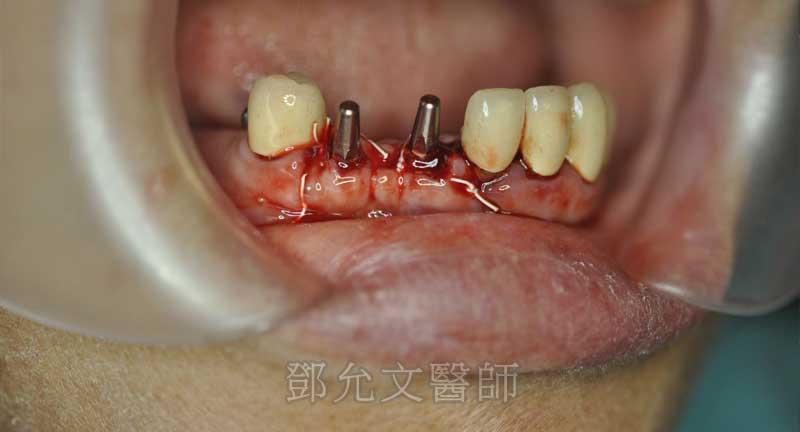 第二次植牙手術後傷口縫合口內照(正面觀)