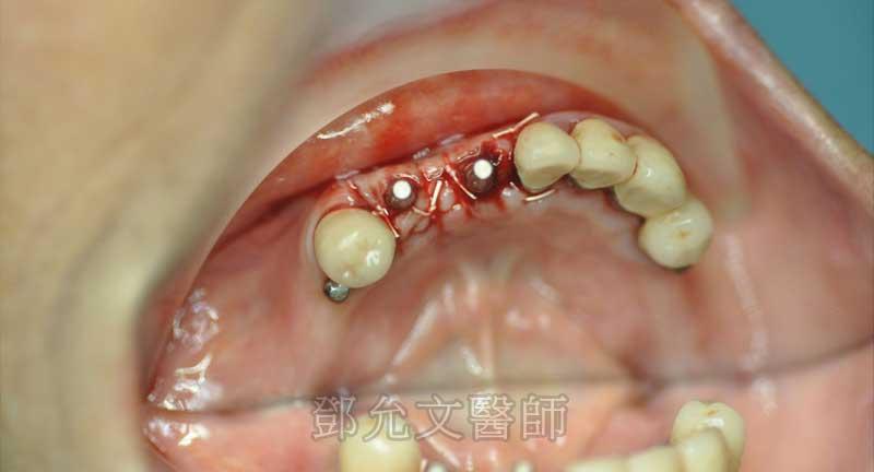第二次植牙手術後傷口縫合口內照(咬合面觀)