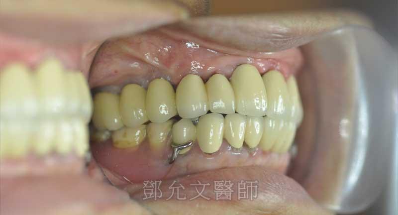 植牙完成口內照右側面觀