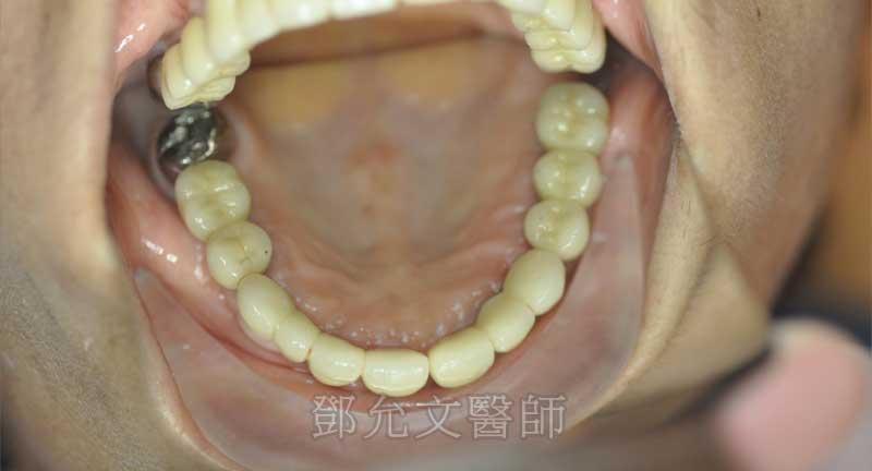 植牙完成口內照上顎咬合面觀