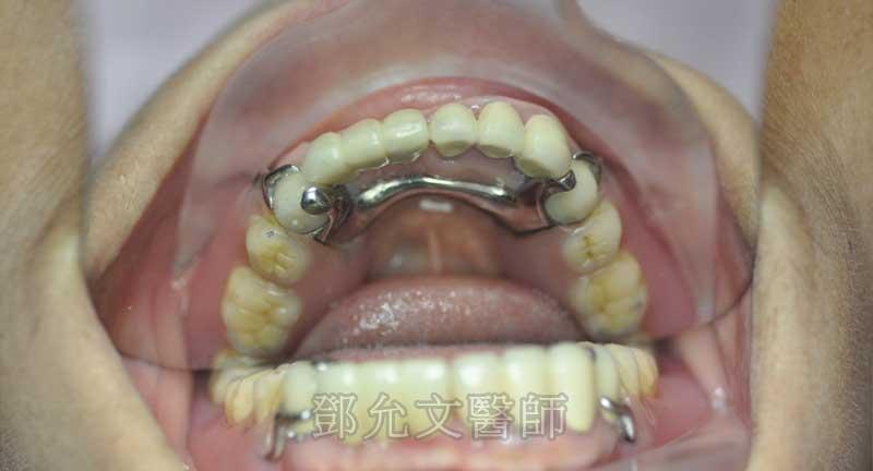 植牙完成口內照下顎咬合面觀