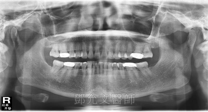 人工植牙手術 人工牙根植體植入後 口內實照