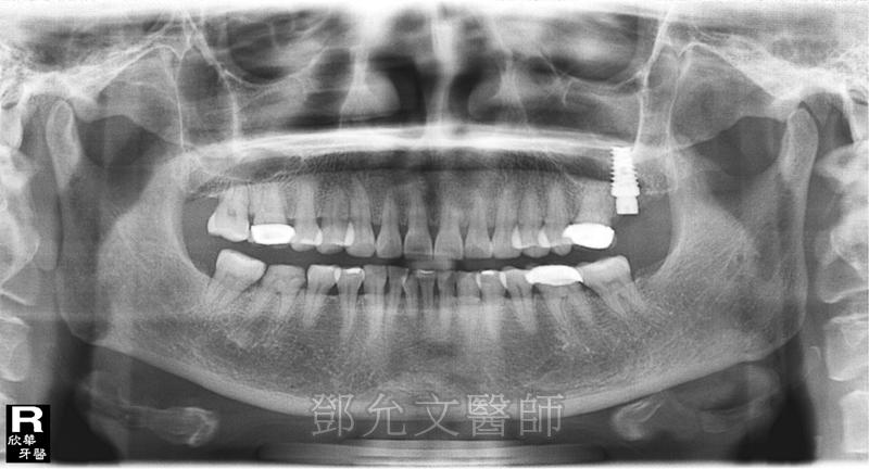 人工植牙手術 人工牙根植體植入後裝戴義齒 口內實照