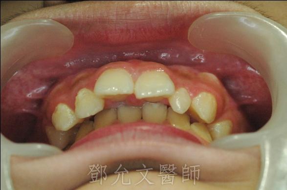 欣華牙醫診所提供