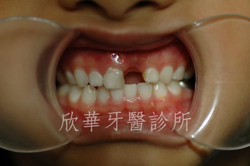 奶瓶性蛀牙重建